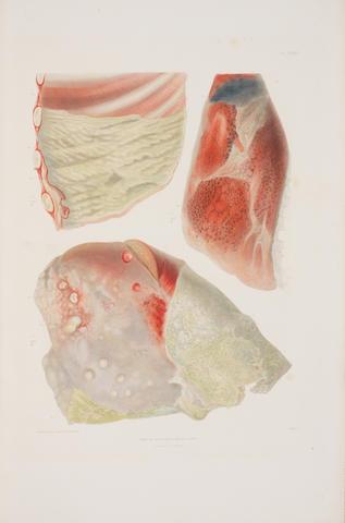 LEBERT (HERMANN)  Traité d'anatomie pathologique générale et spéciale ou description et iconographie pathologique, 4 vol. (including 2 atlases), 1857-1861