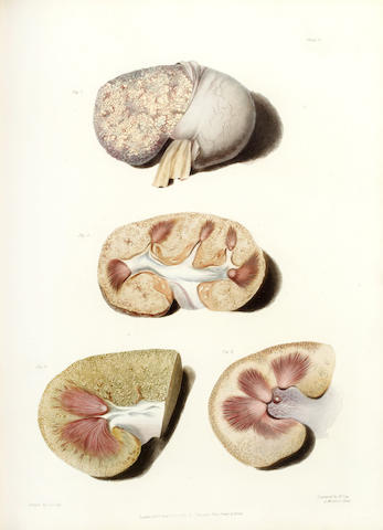 BRIGHT (RICHARD) Reports of Medical Cases, Selected with a View of Illustrating the Symptoms and Cure of Diseases by a Reference to Morbid Anatomy, vol. one (of 3), 1827