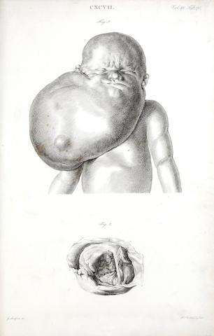 SANDIFORT (Gerard) Museum Anatomicum Acadamiae Lugduno-Batavae, vol. 3 and 4 (of 4), 1827 and 1835